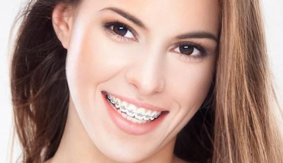 Diş teli tedavisinde doğru bilinen 5 yanlış