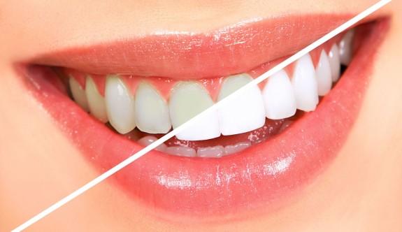 Herkesin Evde Çok Kolay Bir Şekilde Uygulayabileceği 13 Diş Beyazlatma Yöntemi