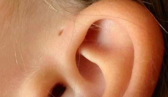 Kulakların üzerindeki delikler neden olur?