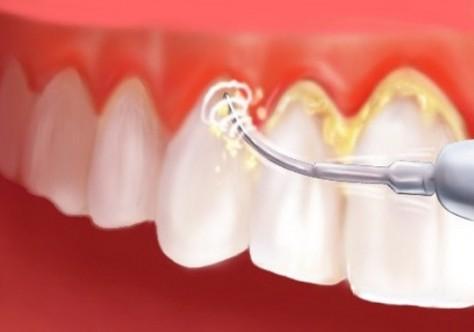 Diş Taşı Nasıl Engellenir