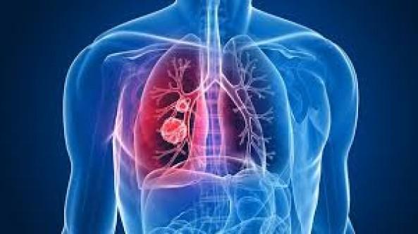 """Kanser riskli akciğer nodüllerinde """"mavi boya"""" devrimi"""