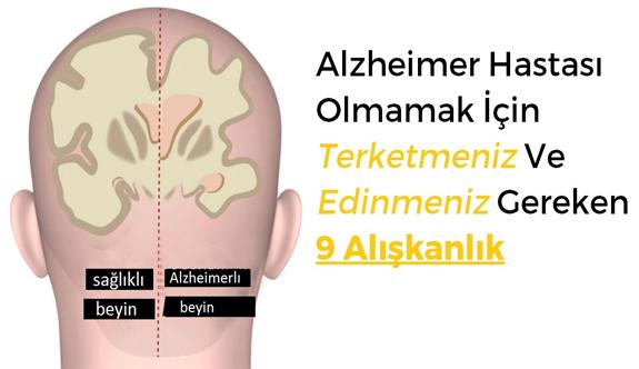 Alzheimer olmamak için bunlara dikkat edin