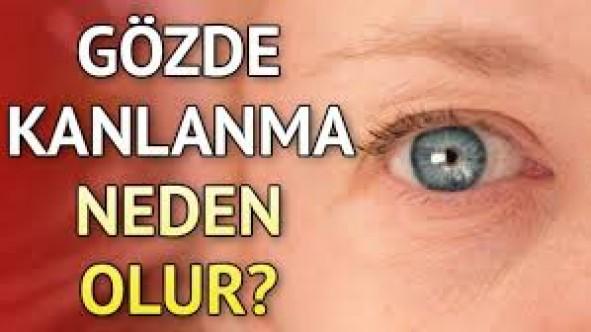 Göz kanlanmasının nedenleri ve tedavisi…