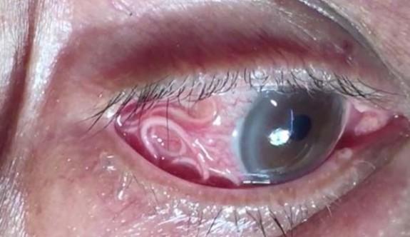 Gözünde 15 santimetrelik solucan çıktı