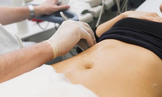 Kürtaj süresi 14 haftaya çıkarılıyor