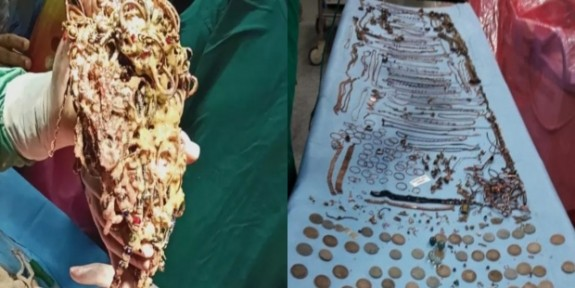 Midesinden 2 Kilo Mücevher Çıktı