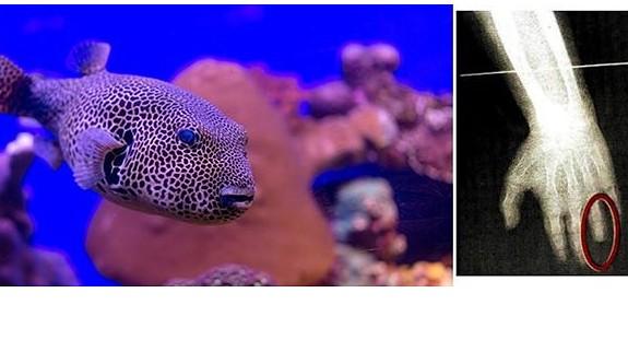 Balon balığı çocuğun parmağını kopardı