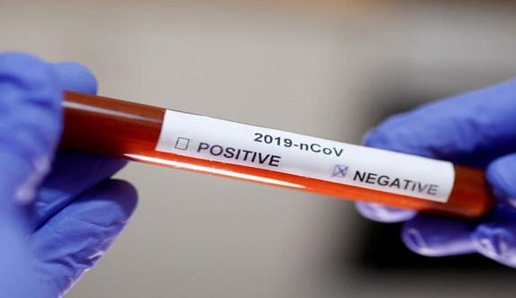 Diyaliz hastasının koronavirüs testinin negatif çıktı