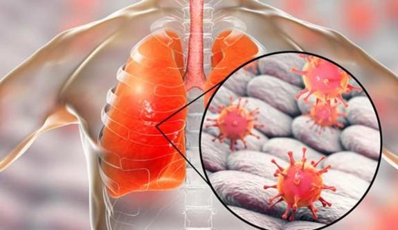 Çin'de yine pandemi tehlikesi: Yeni nesil domuz gribi virüsü