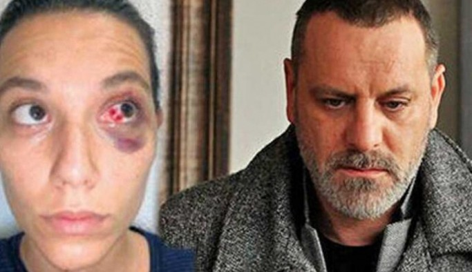 Ozan Güven'e hapis şoku