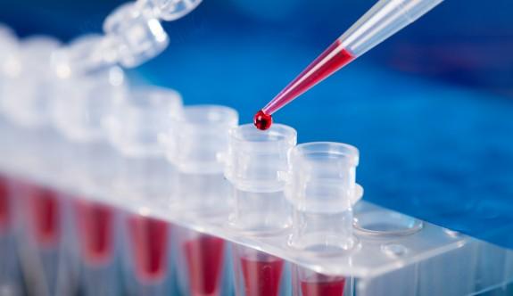 """""""Ülkeye gelen tüm yolcular PCR testi sonuçları çıkana kadar karantinada kalacak"""""""