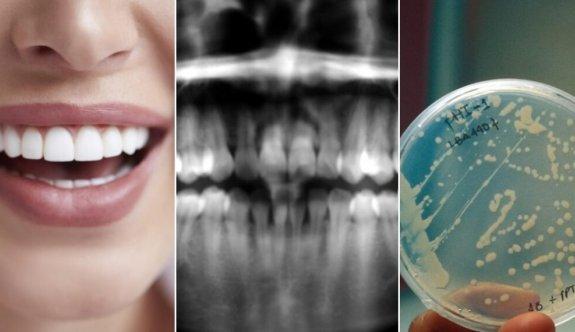 Dişler Hakkında Ufkunuzu Genişletecek Bilgiler