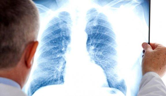 Koah Hastaları COVID-19'u 5 kat daha ağır geçiriyor