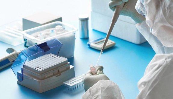 PCR testi, Kıbrıs'ta dava edildi