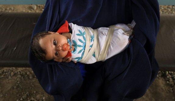 Afgan aile açlıktan ölmemek için bebeklerini sattı