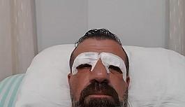 Topaloğlu'na göz operasyonu