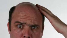 Erkeklerin En Büyük Kabusu Saç Dökülmesi
