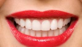 Evde Uygulayabileceğiniz Doğal Diş Beyazlatma...