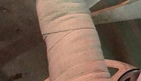 Dikmen taraftarları, bıçakla yaralandı