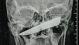 4 gün kafasında bıçakla gezdi!